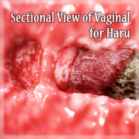 Sectional View Of Vaginal For Haru